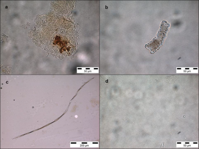Figure 3: Selection of debris extracted from Saint Helena individuals – chewed food remains embedded in calculus (a), phytolith (b), fibre (c), starch (d (Image Copyright: Authors)