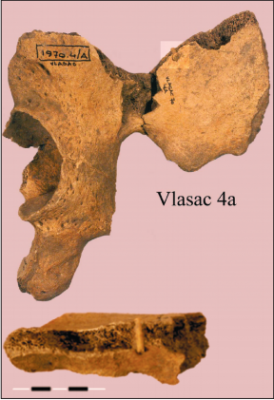 Figure 4: reconstructed ilium of Vlasac burial 4a, showing embedded projectile. (Image: Roksandic, 2006)