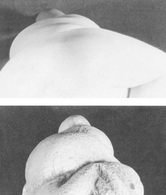 Figure 3. Photographs comparing a six-months pregnant 26 year old Caucasian female of average weight with a cast of Willendorf Number 1 (McDermott 1996, 243).